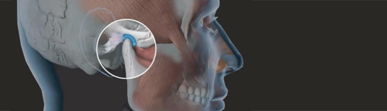 Fisioterapia para Disfunção de ATM Itatiba